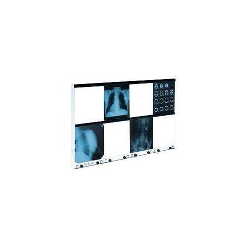 Negatoskop Ośmioklatkowy z Regulacją Luminacji NGP-81