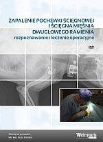 Zapalenie pochewki ścięgnowej i ścięgna mięśnia dwugłowego ramienia rozpoznawanie i leczenie operacyjne DVD