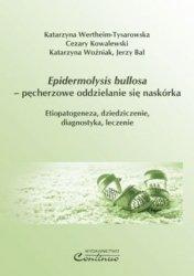 Epidermolysis bullosa pęcherzowe oddzielanie się naskórka Etiopatogeneza dziedziczenie diagnostyka leczenie