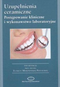 Uzupełnienia ceramiczne Postępowanie kliniczne i wykonawstwo laboratoryjne