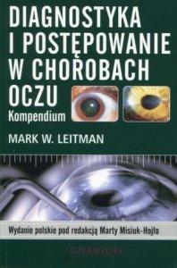 Diagnostyka i postępowanie w chorobach oczu Kompendium