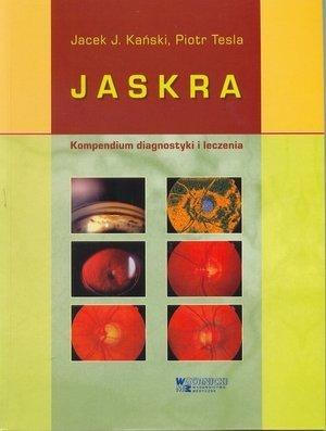Jaskra Kompendium diagnostyki i leczenia