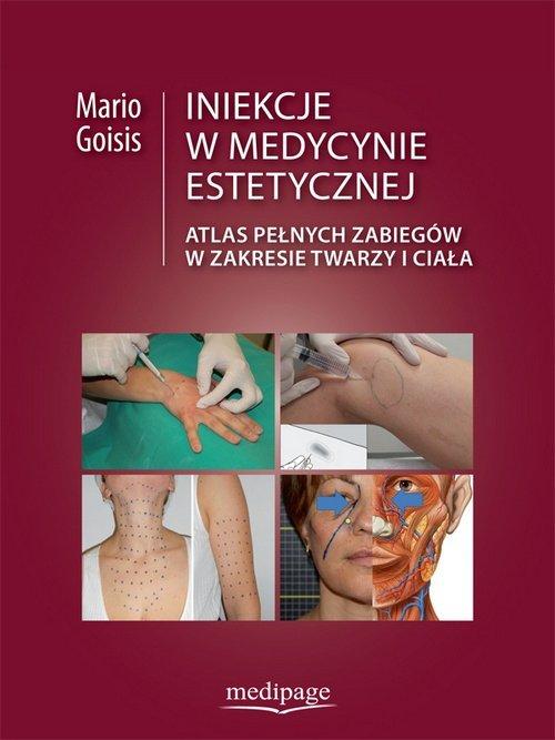 Iniekcje w medycynie estetycznej Atlas pełnych zabiegów w rejonie twarzy i ciała