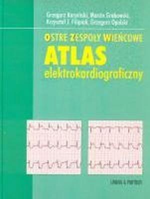 Ostre zespoły wieńcowe Atlas elektrokardiograficzny