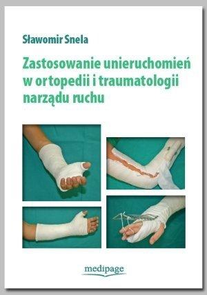 Zastosowanie unieruchomień w ortopedii i traumatologii narządu