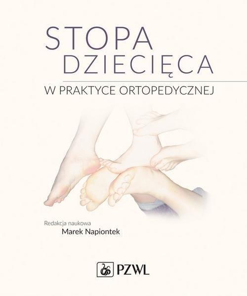 Stopa dziecięca w praktyce ortopedycznej