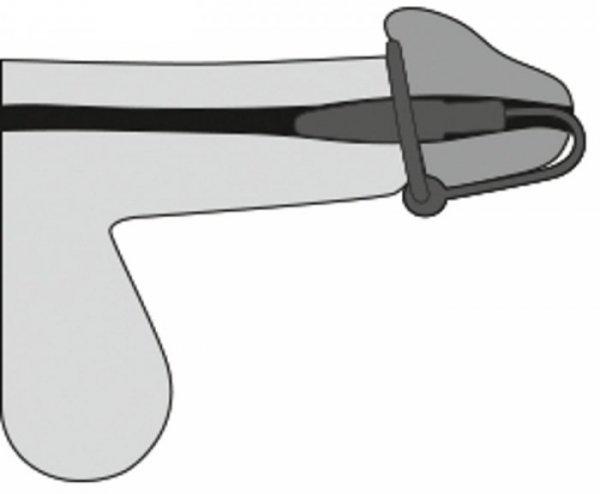 Dilator z pierścieniem