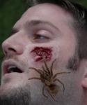 Sztuczna rana - Atak pająka