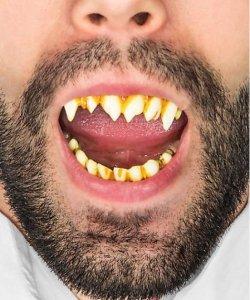 Sztuczne zęby - Wiedźma