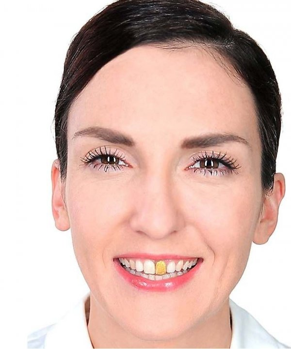 Lakier do zębów - złoty 12 ml