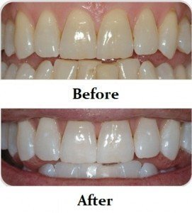 Idol White - Kim Kardashian Teeth Whitening