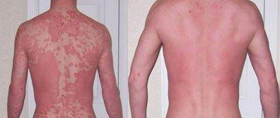 Revitol Dermasis 118ml - skuteczny w walce z łuszczycą